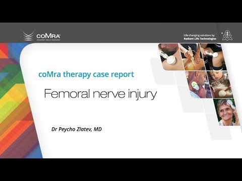 coMra therapy for femoral nerve injury