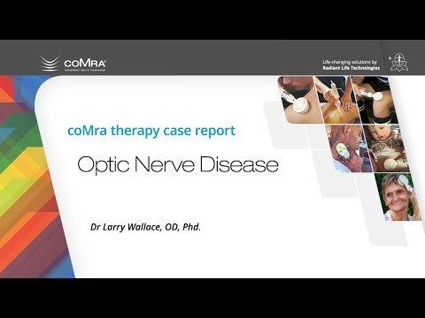 coMra therapy Optic Nerve Disease